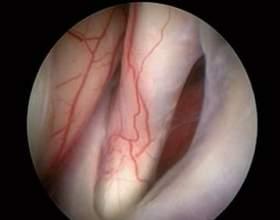 Арахноідальная кіста: діагностика, ускладнення фото
