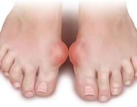 Артрит пальця ноги: причини, симптоми і методи лікування фото