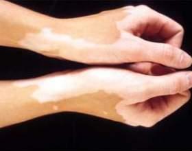 Білі плями на шкірі ніг і спини: причини, і як позбутися фото