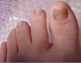 Турбує грибок нігтів? Лікування народними засобами допоможе впоратися з проблемою фото
