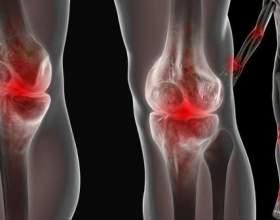 Біль у суглобах: як від неї позбутися? фото