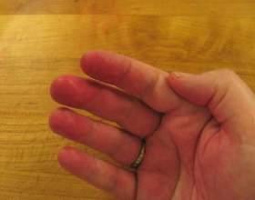 Хвороба лані: червоні плями на долонях фото
