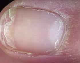 Хвороби нігтів і їх причини фото