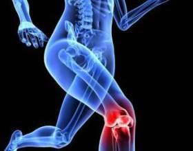 Болять коліна - що робити? Мазь від болю в суглобах фото
