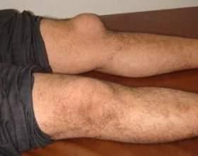 Бурсит колінного суглоба. Його особливості, причини та способи лікування фото