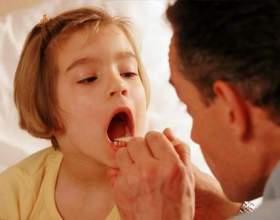 Чим лікувати горло при запаленні? фото