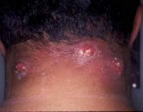Чиряк: лікування, симптоми, ускладнення фото