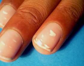 Що може означати біла пляма на нігті? фото