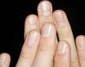 Що позначають білі точки на нігтях фото