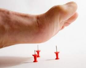 Діабетична полінейропатія - ускладнення цукрового діабету фото