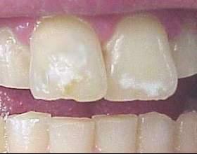 Для сучасної стоматології білі плями на зубах - не проблема фото
