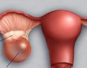 Фолікулярна кіста яєчника. Симптоми, лікування фото