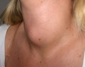 Гіперплазія щитовидної залози: симптоми, діагностика, причини захворювання фото
