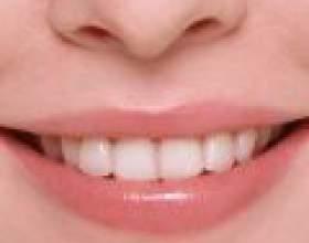 Народні засоби для зміцнення зубів і ясен фото