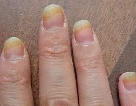 Грибок на пальцях рук: причини, симптоми, лікування фото