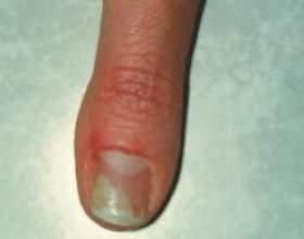 Грибок на руках: симптоматика і способи лікування захворювання фото