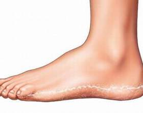 Грибок стопи - чим лікувати. З якої причини з'являється грибок стопи і які кошти ефективні в домашніх умовах. фото