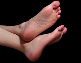 Грибок стопи: ознаки. Грибок стопи ніж лікувати? фото