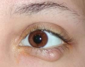 Халязіон: лікування та причини фото
