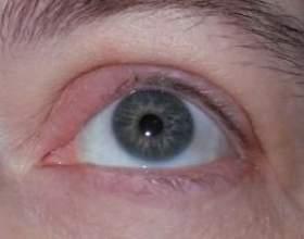 Інформація для всіх: як лікувати ячмінь на очах фото
