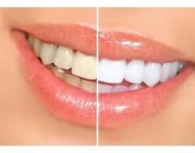 Зміна кольору зубів фото