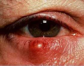 Ячмінь на оці: як лікувати? фото