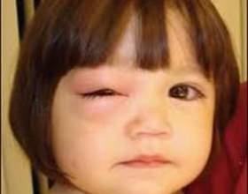 Ячмінь на оці у дитини. Ячмінь у дитини: фото, причини, лікування фото