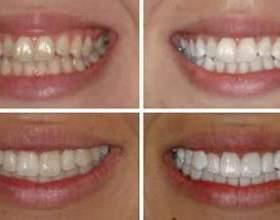 Як без проблем відбілити зуби в домашніх умовах фото