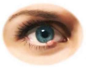 Як швидко позбавитися від ячменю на оці? фото