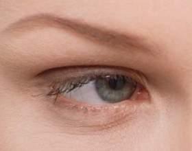 Як позбутися від причин виникнення синців під очима фото