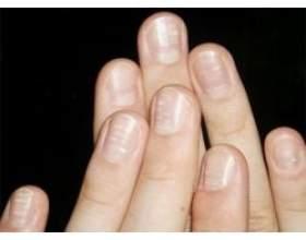 Як позбутися від білих плям на нігтях фото