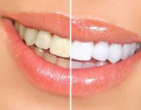 Як позбутися від білих плям на зубах фото