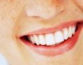 Як лікувати зубний камінь фото
