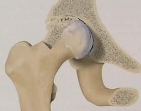 Як лікувати артроз? Гімнастика при артрозі. Деформуючий артроз суглобів фото