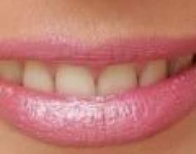 Як очистити зуби від нікотину фото