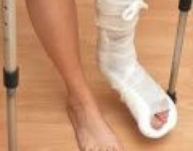 Як визначити перелом ноги фото