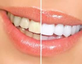 Обережно, відбілювання зубів! фото