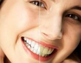 Як відбілити в домашніх умовах зуби? Народні засоби відбілювання зубів фото