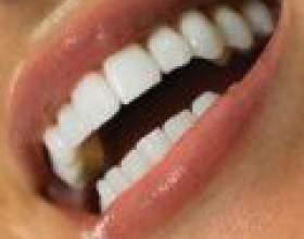 Як відбілити емаль зубів фото