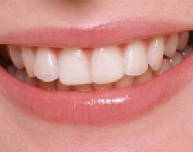 Як прибрати зубний наліт фото