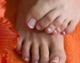 Як прибрати кісточки на пальцях ніг фото