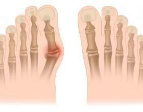 Як прибрати шишки на ногах? Лікування шишок на ногах: відгуки фото