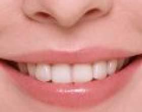 Як прибрати жовтий наліт на зубах фото