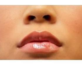 Як вилікувати потріскані губи фото