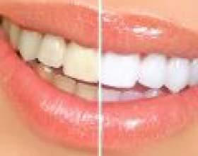 Відбілювання зубів: паста, перекис, зум або лазер? фото