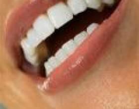 Відбілюючі зубні пасти: які бувають і кому не варто вибілювати зуби фото