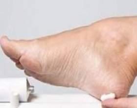 Які існують протигрибкові мазі для ніг, як їх правильно використовувати фото