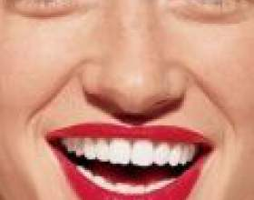 Капи для відбілювання зубів: плюси і мінуси фото