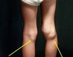 Кіста бейкера колінного суглоба і способи її лікування фото