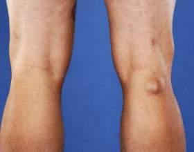 Кіста беккера під коліном. Причини, симптоми, діагностика та лікування фото